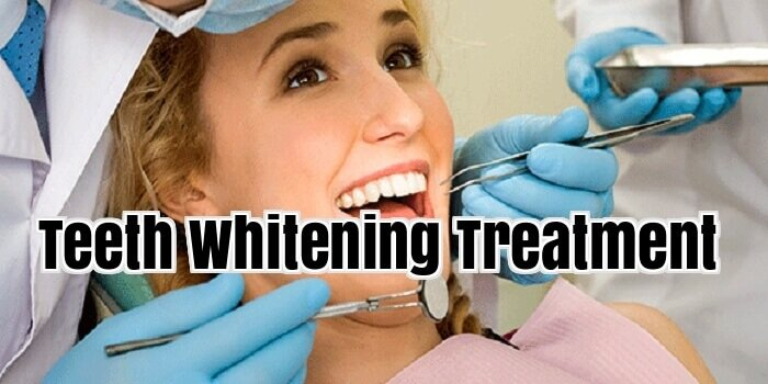 over the counter teeth whitening reviews